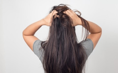 Women with itchy scalp scratching hair
